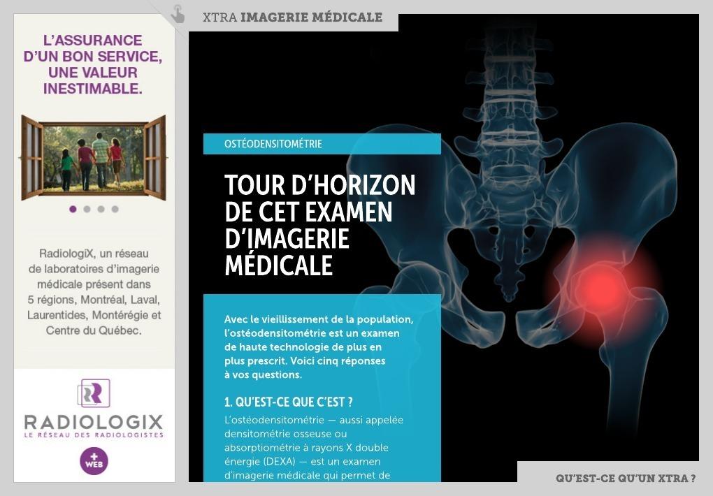 densitométrie osseuse traitement